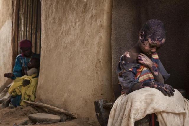 """The Forgotten Mountains of Sudan,"" February 27, 2015. Darfur, Sudan. Adam Abdel, 7, who was severely burned after a bomb was dropped by a Sudanese government Antonov plane, sits next to his family home in Burgu, Central Darfur, Sudan. World Press Photo prize winning image by Adriane Ohanesian."